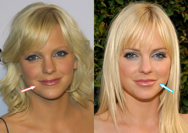 Did Anna Faris Get Lip Injections?