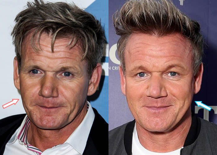 Did Gordon Ramsay Get Botox?