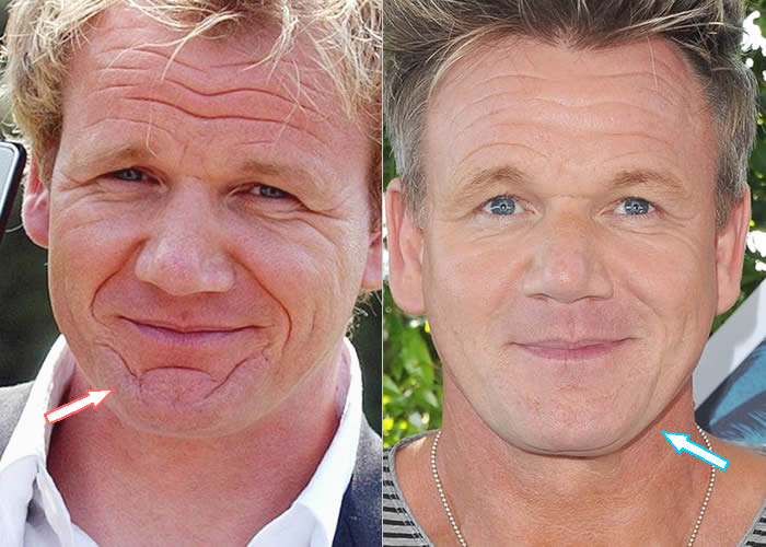 What Happened To Gordon Ramsay's Chin Scar?