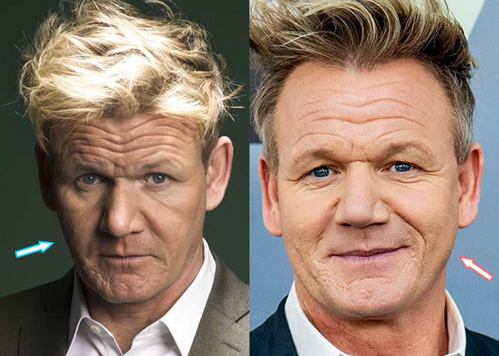 Did Gordon Ramsay Have Facelift?