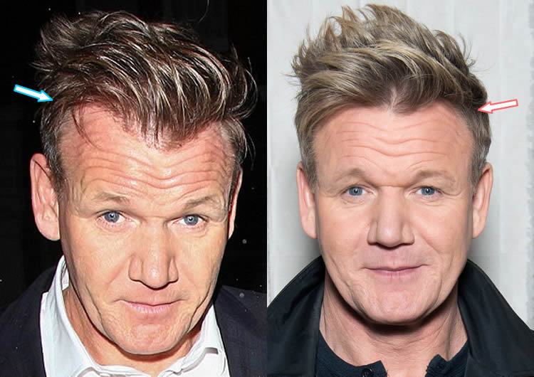 Has Gordon Ramsay Had Hair Transplant?