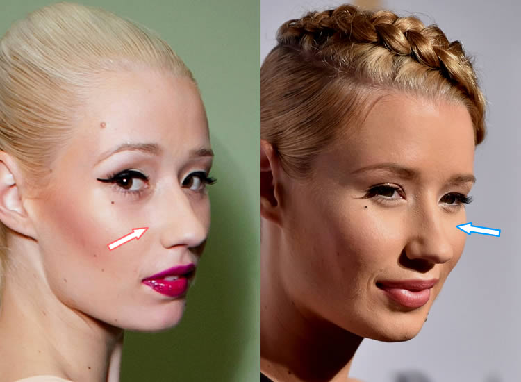 Has Iggy Azalea Have A Nose Job?