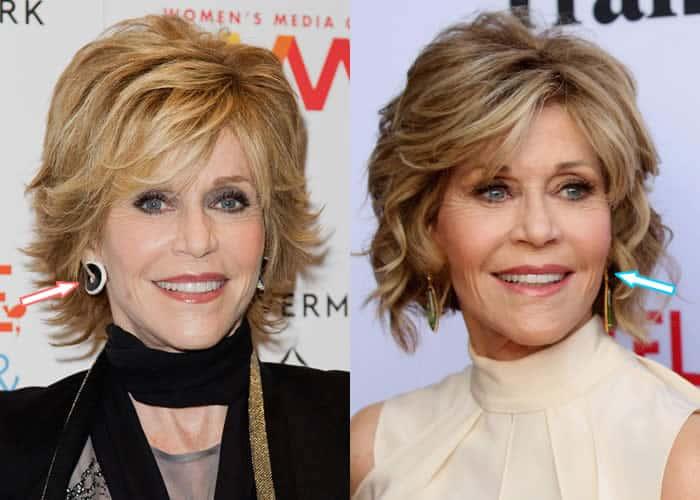 Has Jane Fonda Had Botox?