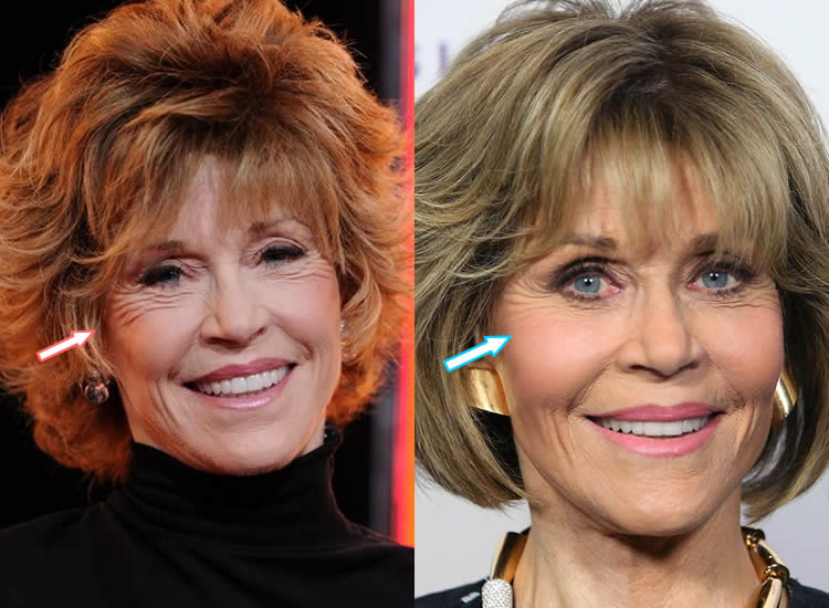 Did Jane Fonda Get an Eye Lift?