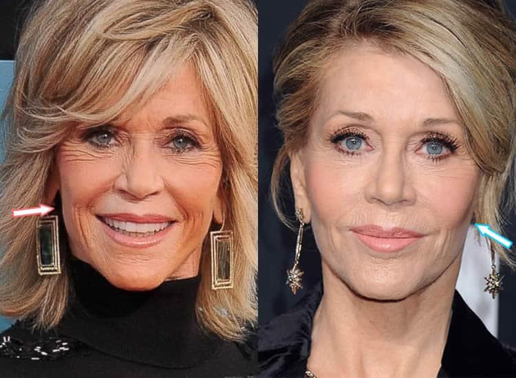 Did Jane Fonda Have Facelift?