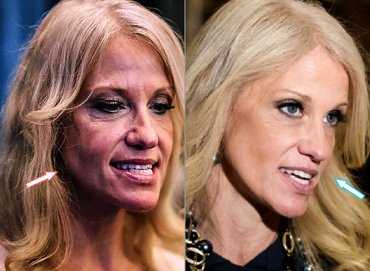 Did Kellyanne Conway Have Facelift?
