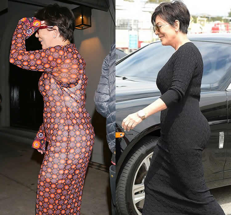 Did Kris Jenner Have Butt Implants?