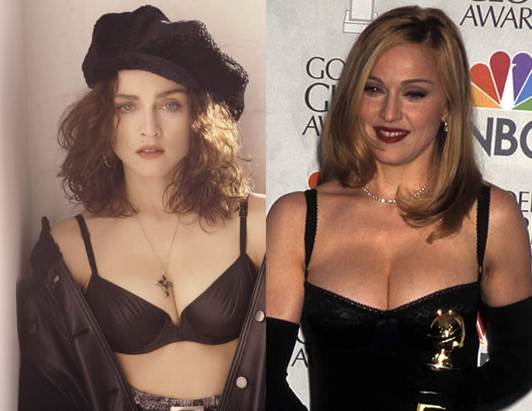 Does Madonna Have Boob Job?