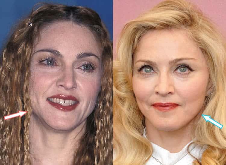 Has Madonna Had Botox?