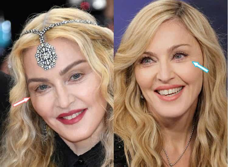 Did Madonna Get An Eye Lift?