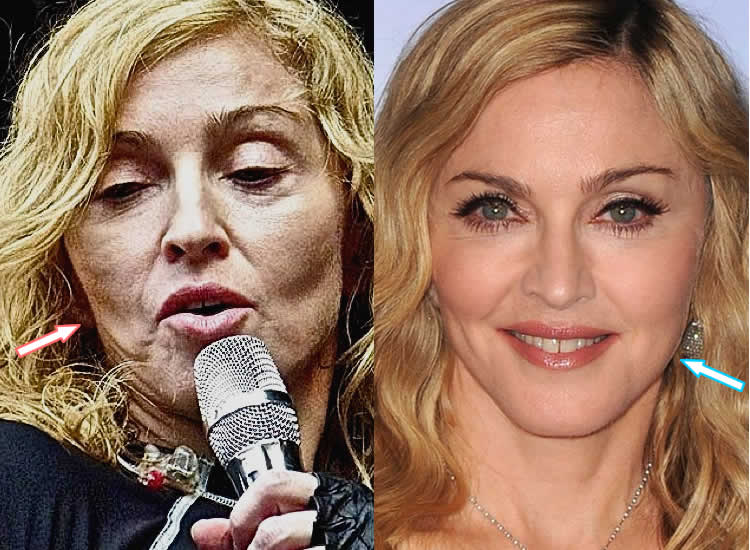 Did Madonna Have Facelift?