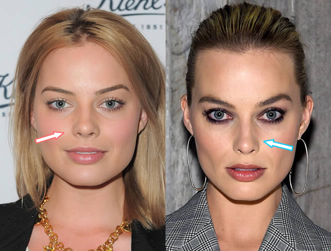 Did Margot Robbie have a nose job?