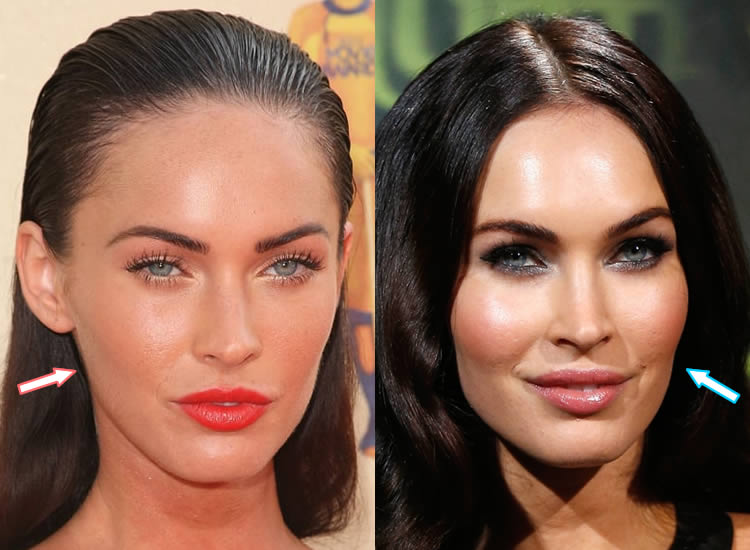 Has Megan Fox Had Botox?