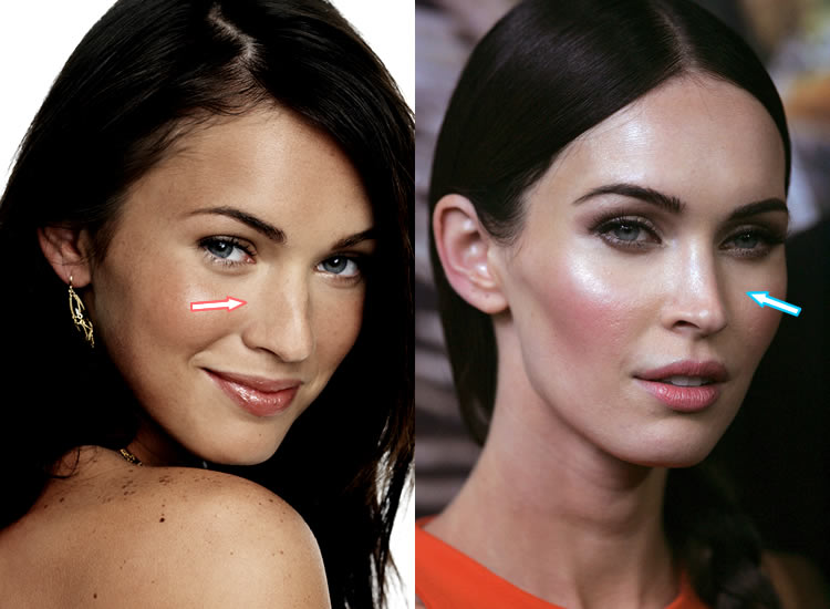 Did Megan Fox Have Nose Job?