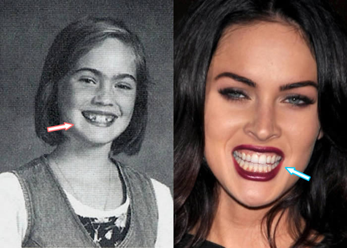 Megan Fox's Teeth