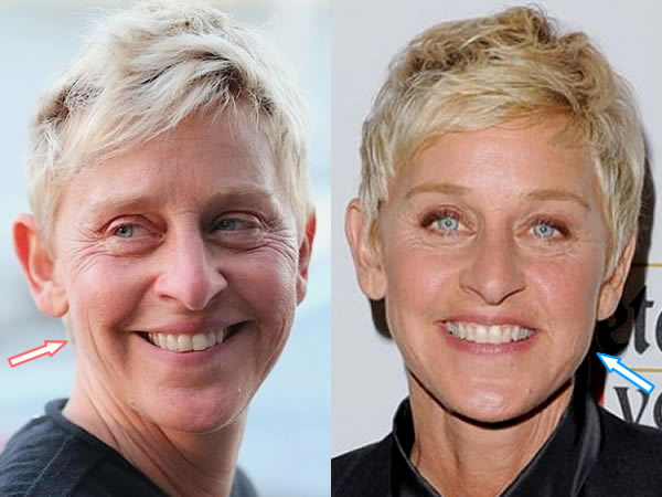 Did Ellen DeGeneres Have Facelift?