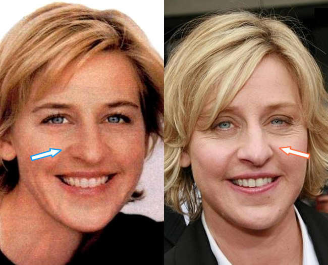 Has Ellen DeGeneres Had a Nose Job?