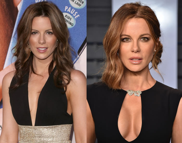 Did Kate Beckinsale Get a Boob Job?