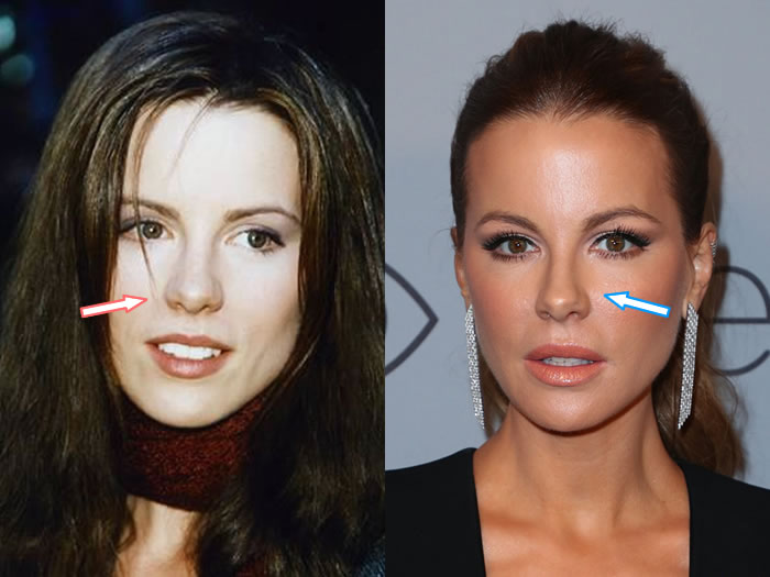 Has Kate Beckinsale Had a Nose Job?