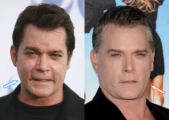 Did Ray Liotta Have Facelift?