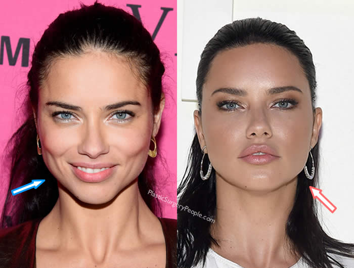 Did Adriana Lima Have Botox?