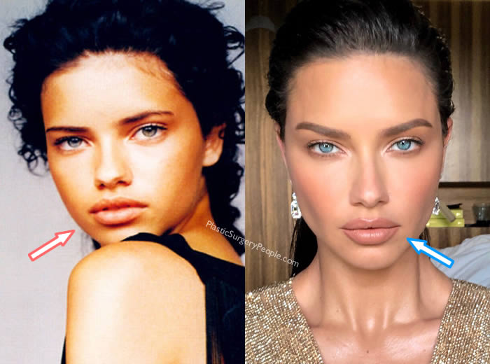 Did Adriana Lima Get Lip Injections?