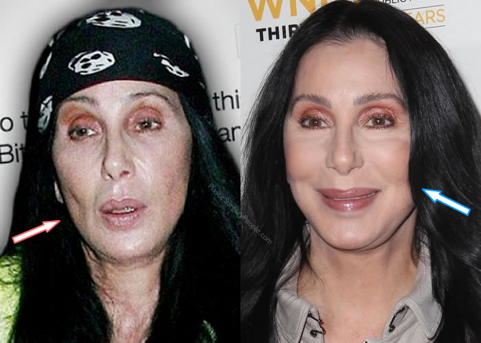 Did Cher Have Botox?