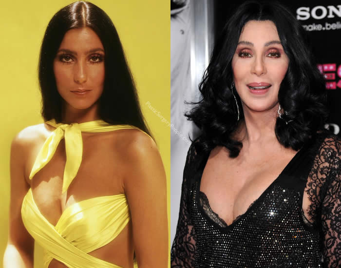 Does Cher Have Breast Implants?