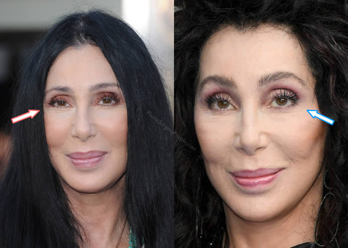 Does Cher have work done to her eyes? Like an eyelift?