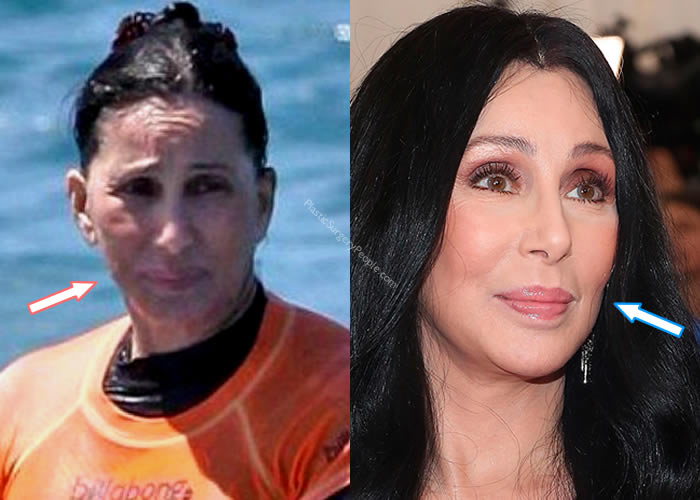 Has Cher Had a Facelift?