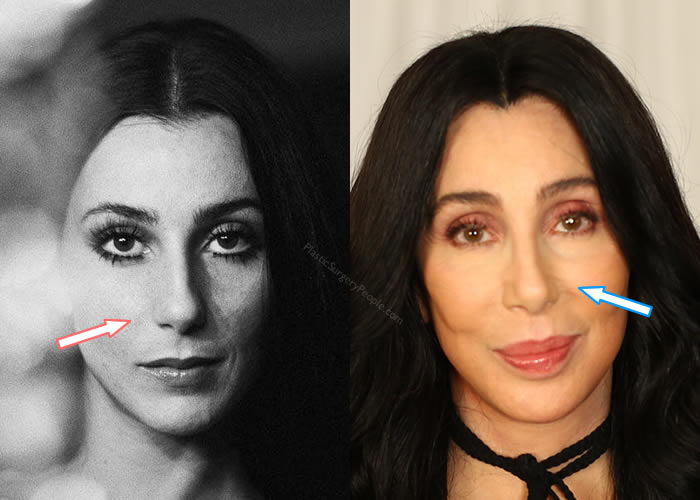 Did Cher Get a Nose Job?