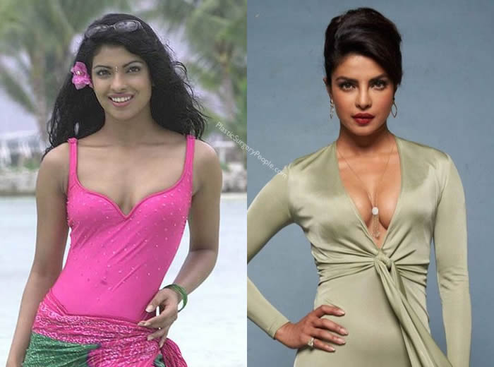 Has Priyanka Chopra Had Breast Augmentation?