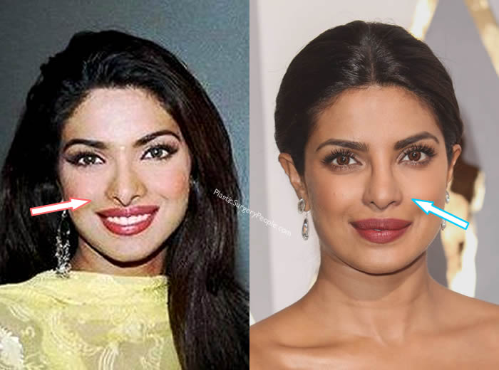 Did Priyanka Chopra Have Nose Job?