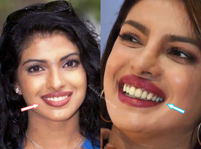 Priyanka Chopra Teeth Before and After