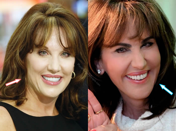 Has Robin Mcgraw Had Botox?