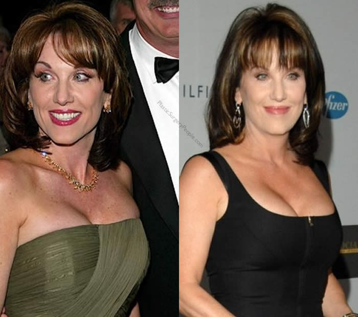 Does Robin Mcgraw Have Breast Implants?