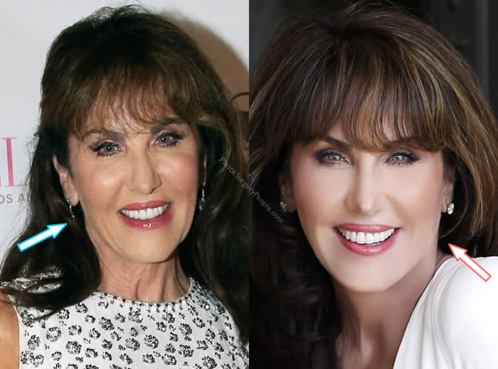 Did Robin Mcgraw Have Facelift?