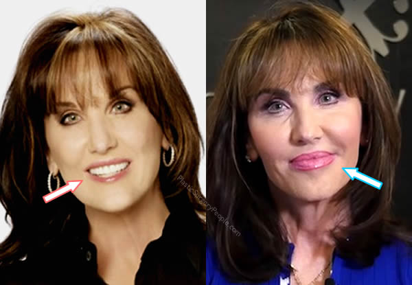 Did Robin Mcgraw Get Lip Fillers?