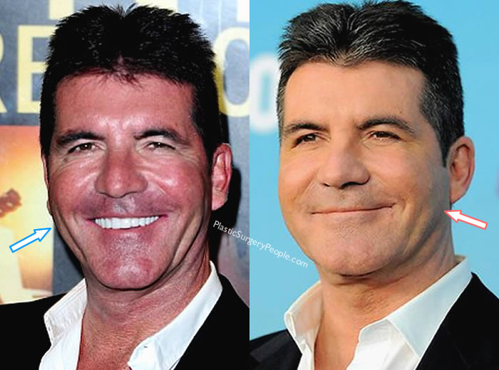 Did Simon Cowell Have Botox?