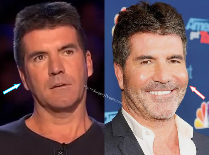 Did Simon Cowell Get Cheek Implants?