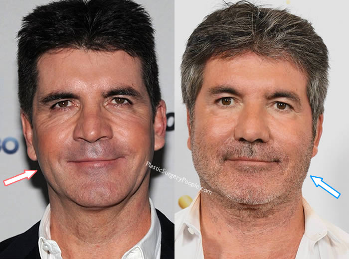 Has Simon Cowell Had Face Lift?