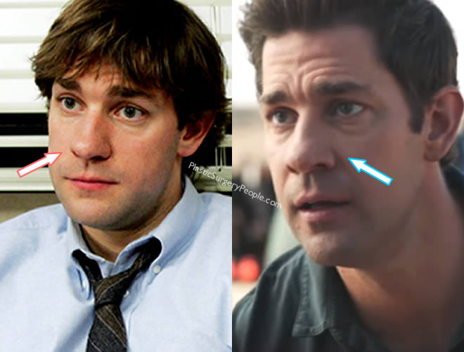 John Krasinski's nose at different angle