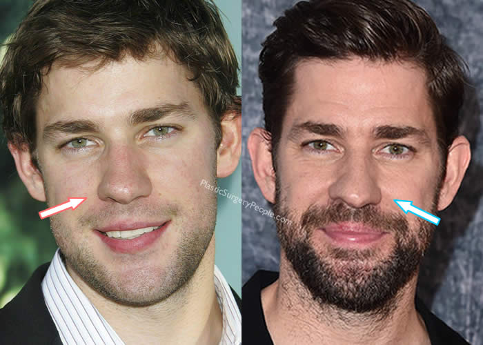 John Krasinski Nose Job Comparison - Front View