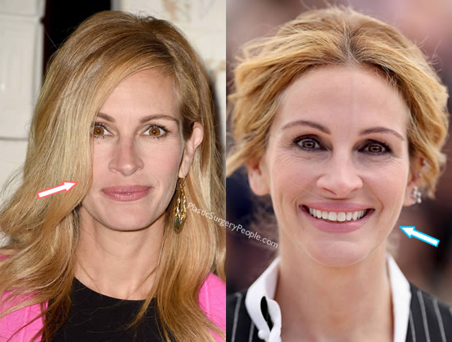 Did Julia Roberts get botox injections?