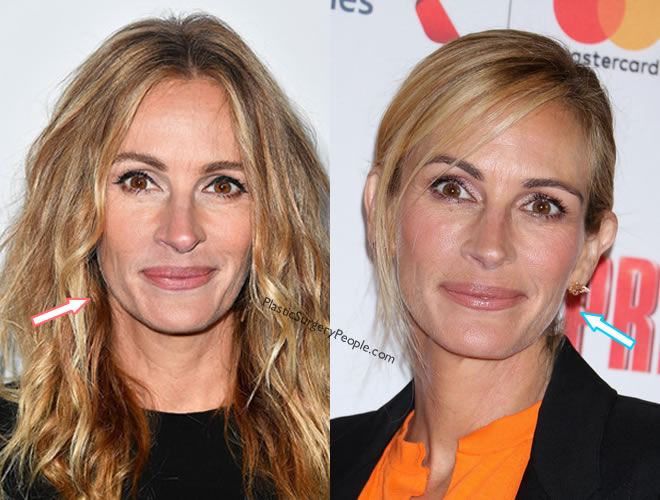 Did Julia Roberts have facelift?