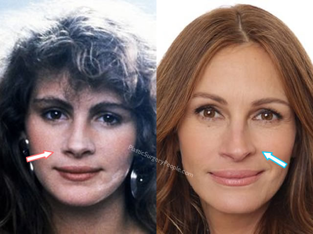 Has Julia Roberts had a nose job?