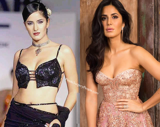 Has Katrina Kaif had boob job?