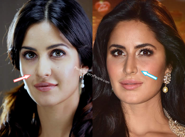 Did Katrina Kaif have nose job?