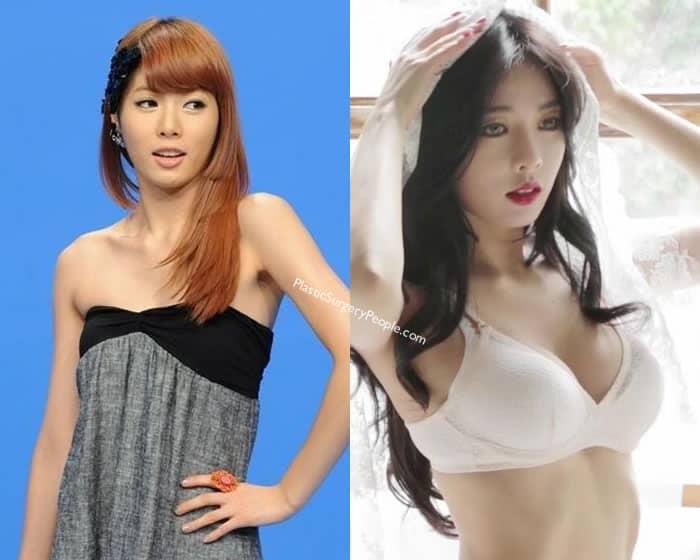 Did Hyuna get a boob job?