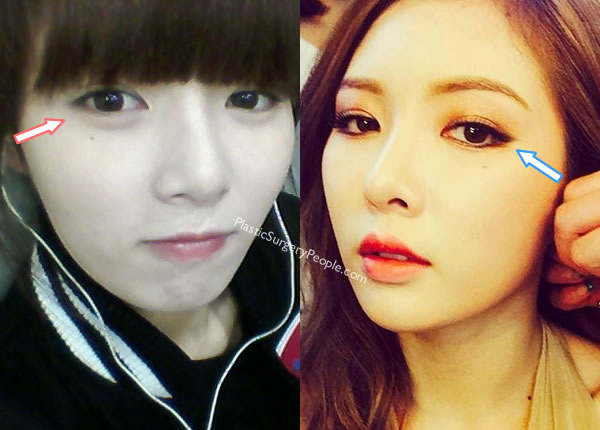 Hyuna's eyes before and after